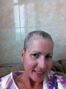 Hair loss, 9.13.13